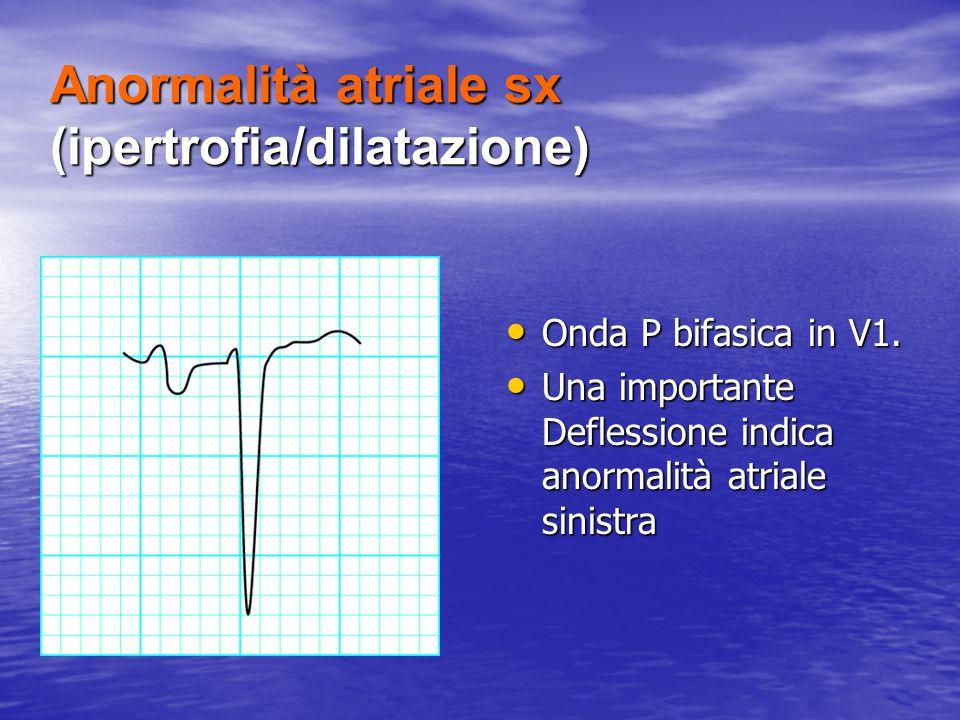 Anormalità atriale sx (ipertrofia/dilatazione) Onda P bifasica in V1. Onda P bifasica in V1. Una importante Deflessione indica anormalità atriale sini