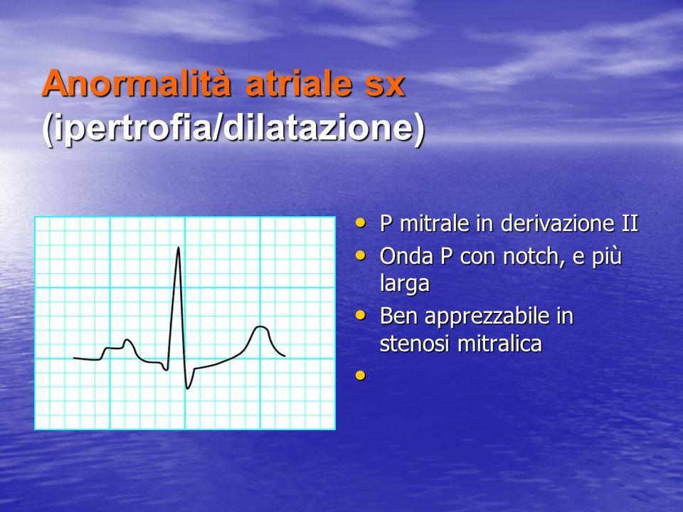 Anormalità atriale sx (ipertrofia/dilatazione) P mitrale in derivazione II P mitrale in derivazione II Onda P con notch, e più larga Onda P con notch,