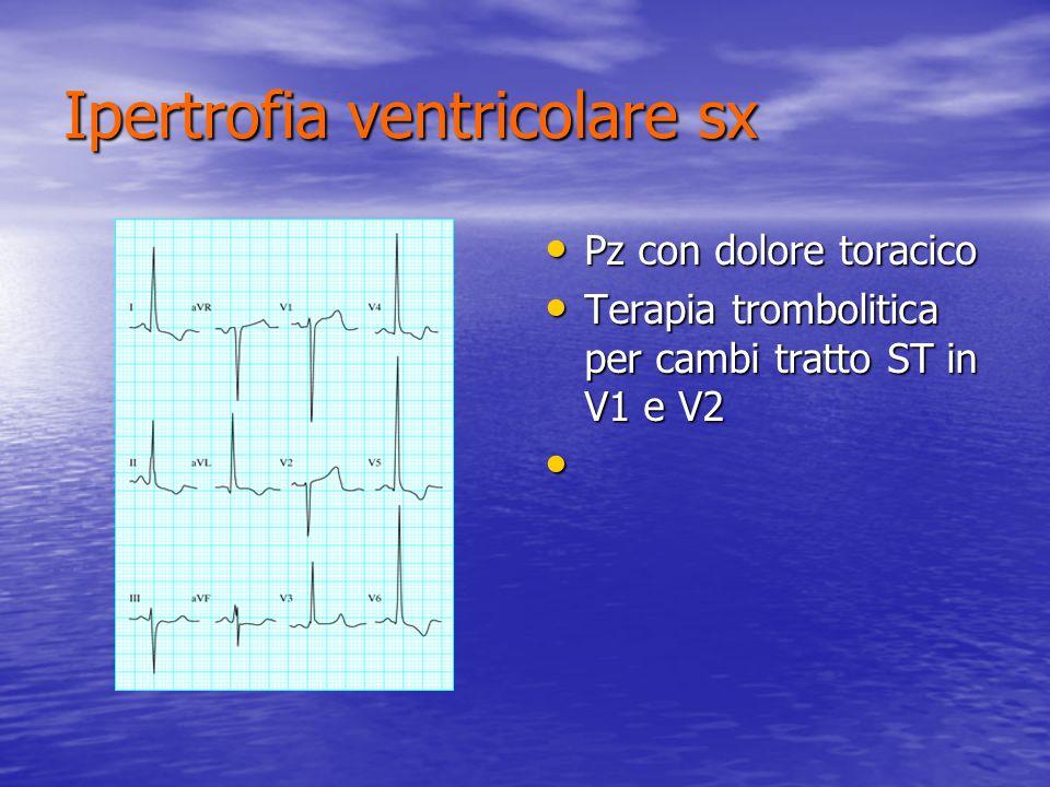Ipertrofia ventricolare sx Pz con dolore toracico Pz con dolore toracico Terapia trombolitica per cambi tratto ST in V1 e V2 Terapia trombolitica per