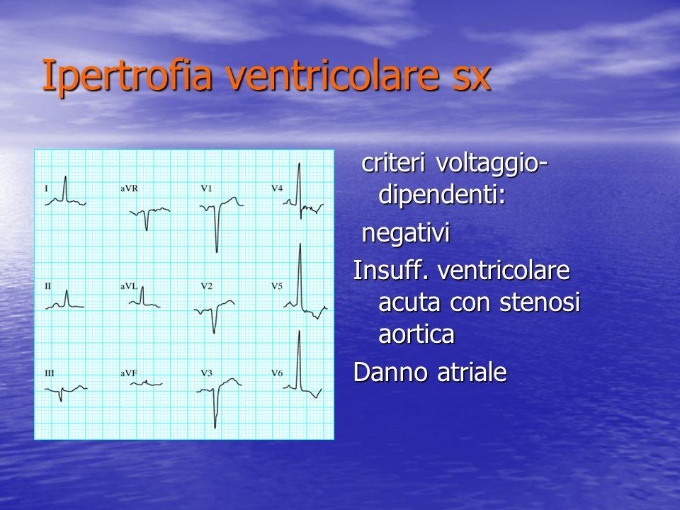 Ipertrofia ventricolare sx criteri voltaggio- dipendenti: criteri voltaggio- dipendenti: negativi negativi Insuff. ventricolare acuta con stenosi aort