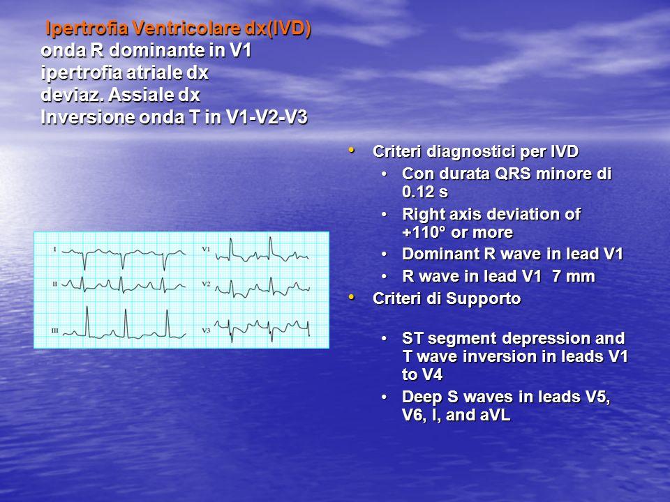 Ipertrofia Ventricolare dx(IVD) onda R dominante in V1 ipertrofia atriale dx deviaz. Assiale dx Inversione onda T in V1-V2-V3 Ipertrofia Ventricolare