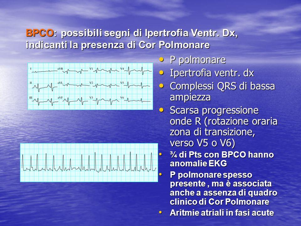 BPCO: possibili segni di Ipertrofia Ventr. Dx, indicanti la presenza di Cor Polmonare P polmonare P polmonare Ipertrofia ventr. dx Ipertrofia ventr. d