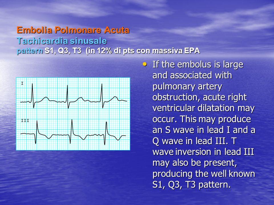 Embolia Polmonare Acuta Tachicardia sinusale pattern S1, Q3, T3 (in 12% di pts con massiva EPA Embolia Polmonare Acuta Tachicardia sinusale pattern S1