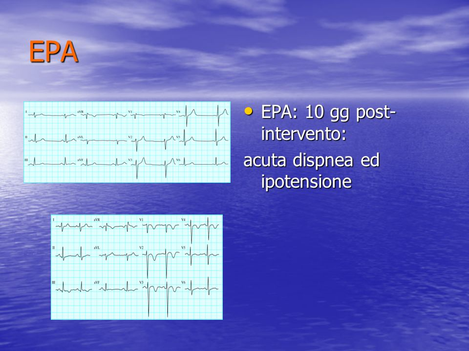 EPA EKG in EPA EKG in EPA Sinus tachycardia Sinus tachycardia Atrial flutter or fibrillation Atrial flutter or fibrillation S1, Q3, T3 pattern S1, Q3, T3 pattern Right bundle branch block (incomplete or complete) Right bundle branch block (incomplete or complete) T wave inversion in the right precordial leads T wave inversion in the right precordial leads P pulmonale P pulmonale Right axis deviation Right axis deviation
