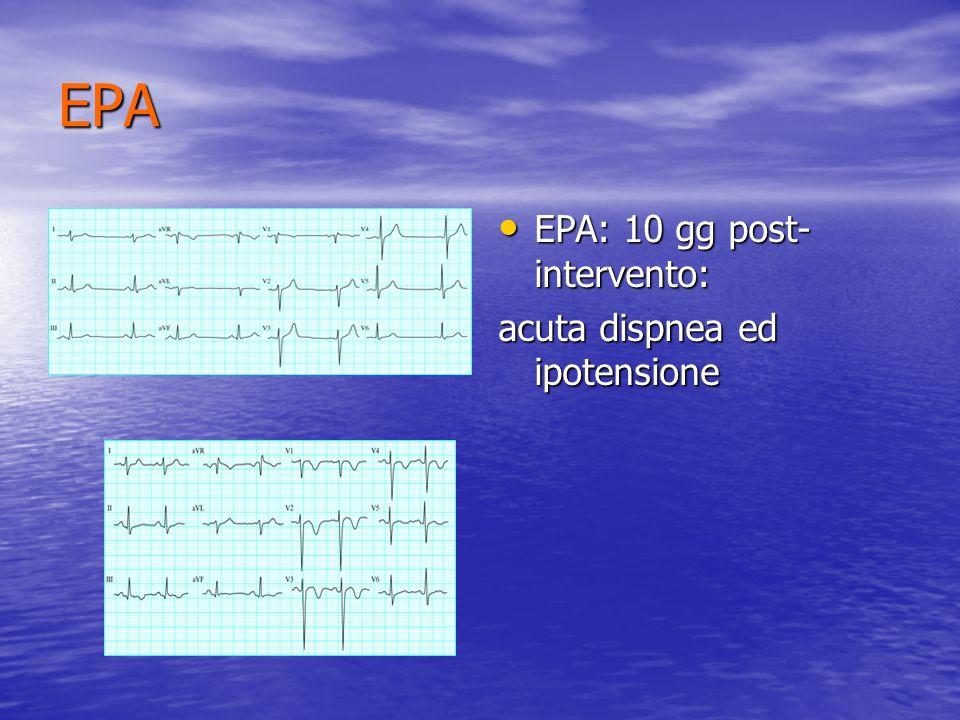 EPA EPA: 10 gg post- intervento: EPA: 10 gg post- intervento: acuta dispnea ed ipotensione