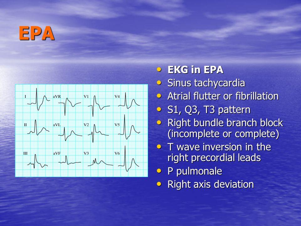 EPA EKG in EPA EKG in EPA Sinus tachycardia Sinus tachycardia Atrial flutter or fibrillation Atrial flutter or fibrillation S1, Q3, T3 pattern S1, Q3,