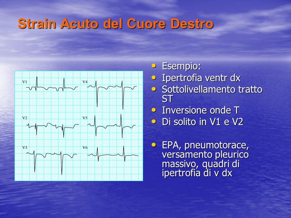 Strain Acuto del Cuore Destro Esempio: Esempio: Ipertrofia ventr dx Ipertrofia ventr dx Sottolivellamento tratto ST Sottolivellamento tratto ST Invers