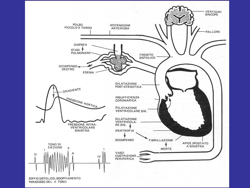 Insufficienza aortica Fisiopatologia: –La incontinenza della valvola aortica può essee dovuta a: Alterazioni dei lembi valvolari (valvola bicuspide, deformazioni post- infiammatorie o post-endocarditiche) Alterazione della geometria della radice aortica (ectasia anulo-aortica, dilatazione della radice e prolasso delle cuspidi secondaria a dissezione aortica) –La insufficienza aortica produce un sovraccarico di volume per il ventricolo sinistro con progressiva dilatazione e comparsa di sintomi (tardivi!) di insufficienza ventricolare sx (dispnea prima da sforzo e poi a riposo, fino alledema polmonare); il quadro clinico è molto più drammatico se la insufficienza si instaura acutamente (dissezione, endocardite) Indicazione chirurgica: –Insufficienza valvolare aortica severa (angio, eco) con segni di disfunzione ventricolare sx (aumento dei diametri, riduzione della FE) –Presenza di sintomi (NYHA II-IV) –Endocardite in fase attiva con insufficienza rilevante ed evidenza di scompenso sx acuto o segni di embolizzazione Fisiopatologia: –La incontinenza della valvola aortica può essee dovuta a: Alterazioni dei lembi valvolari (valvola bicuspide, deformazioni post- infiammatorie o post-endocarditiche) Alterazione della geometria della radice aortica (ectasia anulo-aortica, dilatazione della radice e prolasso delle cuspidi secondaria a dissezione aortica) –La insufficienza aortica produce un sovraccarico di volume per il ventricolo sinistro con progressiva dilatazione e comparsa di sintomi (tardivi!) di insufficienza ventricolare sx (dispnea prima da sforzo e poi a riposo, fino alledema polmonare); il quadro clinico è molto più drammatico se la insufficienza si instaura acutamente (dissezione, endocardite) Indicazione chirurgica: –Insufficienza valvolare aortica severa (angio, eco) con segni di disfunzione ventricolare sx (aumento dei diametri, riduzione della FE) –Presenza di sintomi (NYHA II-IV) –Endocardite in fase attiva con insufficienza rilevante ed evidenza di scompen