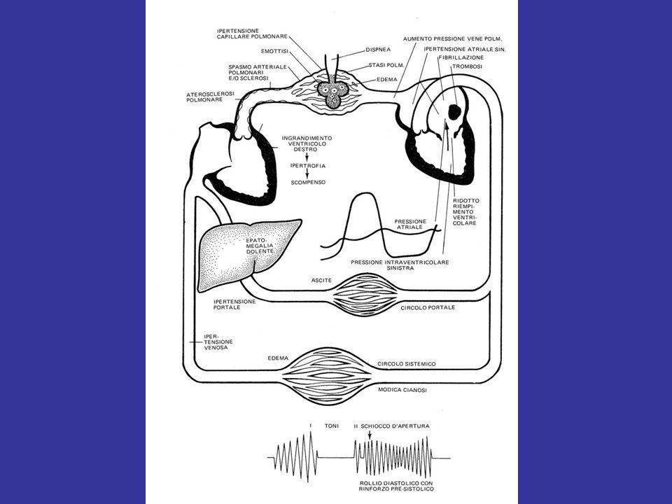 Scallop valvolare mitralico, valvola mitralica e valvola aortica.