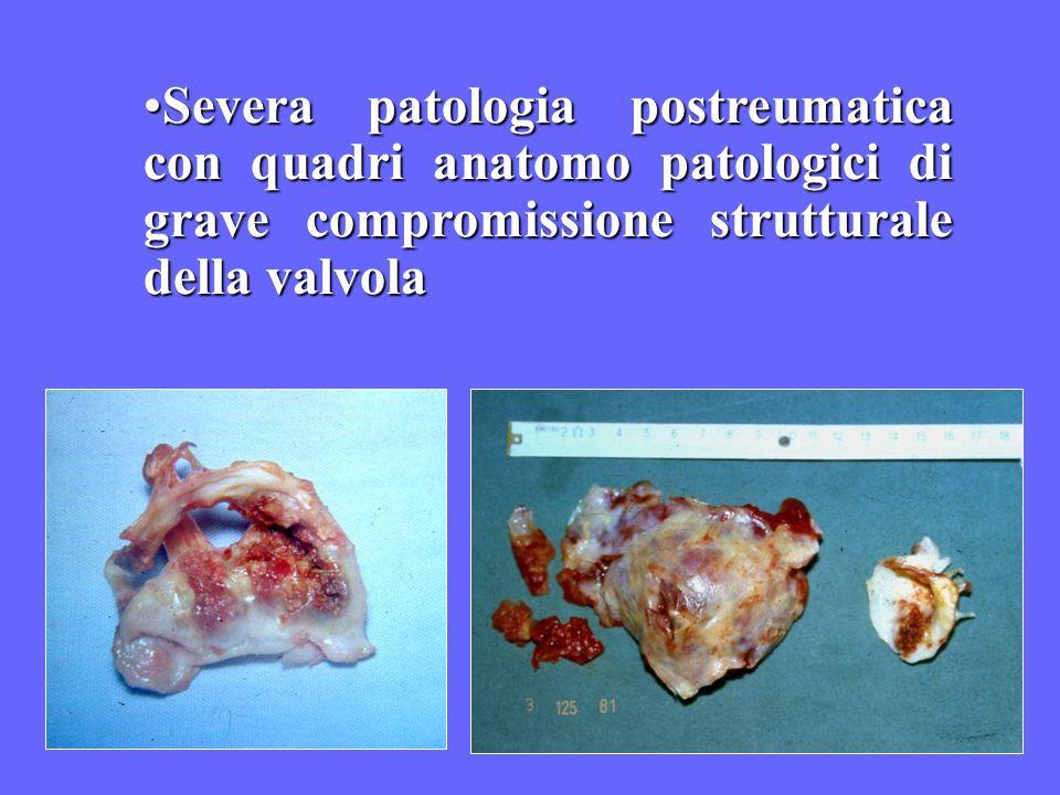 Severa patologia postreumatica con quadri anatomo patologici di grave compromissione strutturale della valvolaSevera patologia postreumatica con quadr