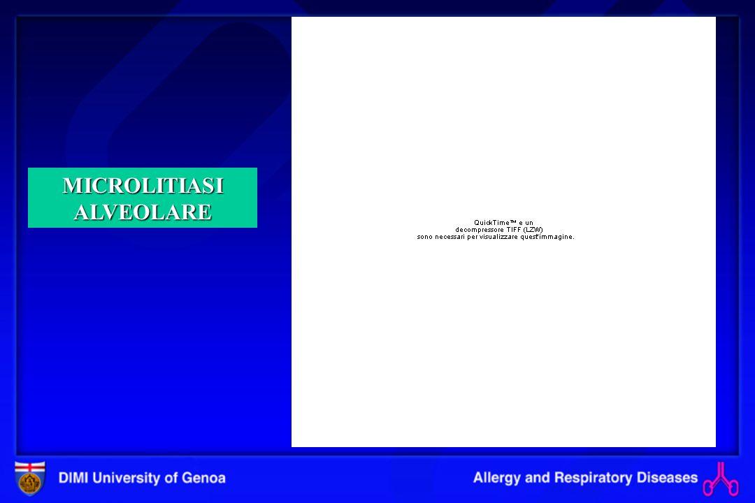 Polmonite da ipersensibilità : diagnosi differenziale FORME ACUTE : febbre da umidificatori (inalazione di endotossine di origine batterica o fungina ) polmoniti interstiziali da virus, mycoplasmi, clamidie e rickettsie) Asma allergica FORME CRONICHE : sarcoidosi fibrosi primitive idiopatiche