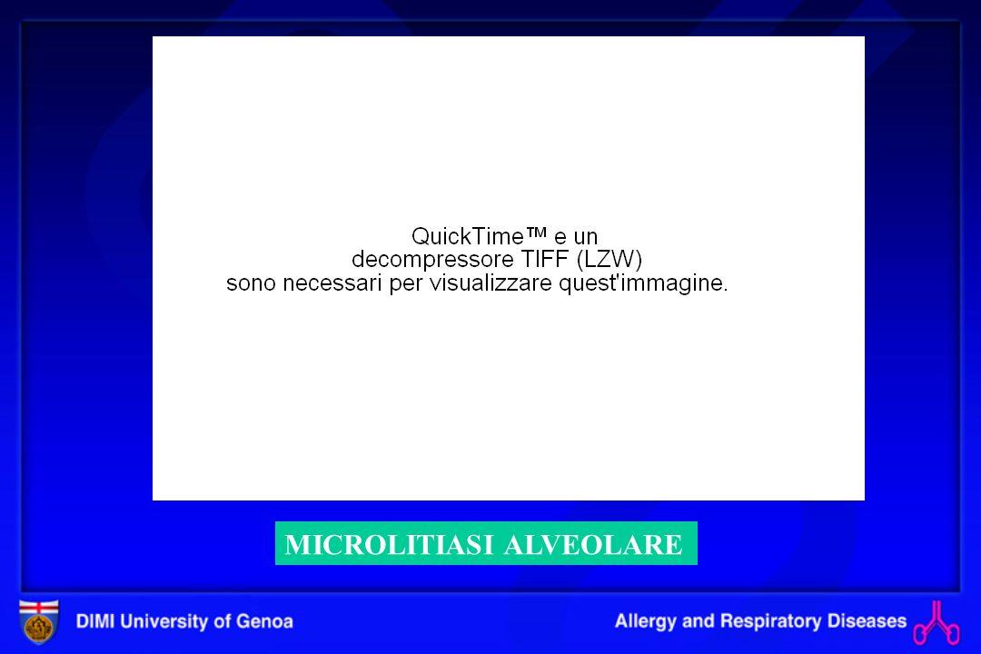 Polmoniti da ipersensibilità (AAE, Alveoliti Allergiche Estrinseche (AAE, Alveoliti Allergiche Estrinseche ) DefinizioneInfiammazione immuno-mediata dei bronchioli terminali e alveoli indotta, in soggetti predisposti, dalla inalazione ripetuta di antigeni organici.
