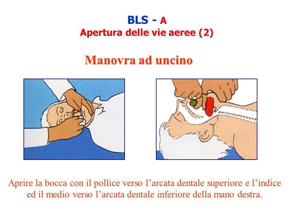 BLS - A Apertura delle vie aeree (2) Aprire la bocca con il pollice verso larcata dentale superiore e lindice ed il medio verso larcata dentale inferi