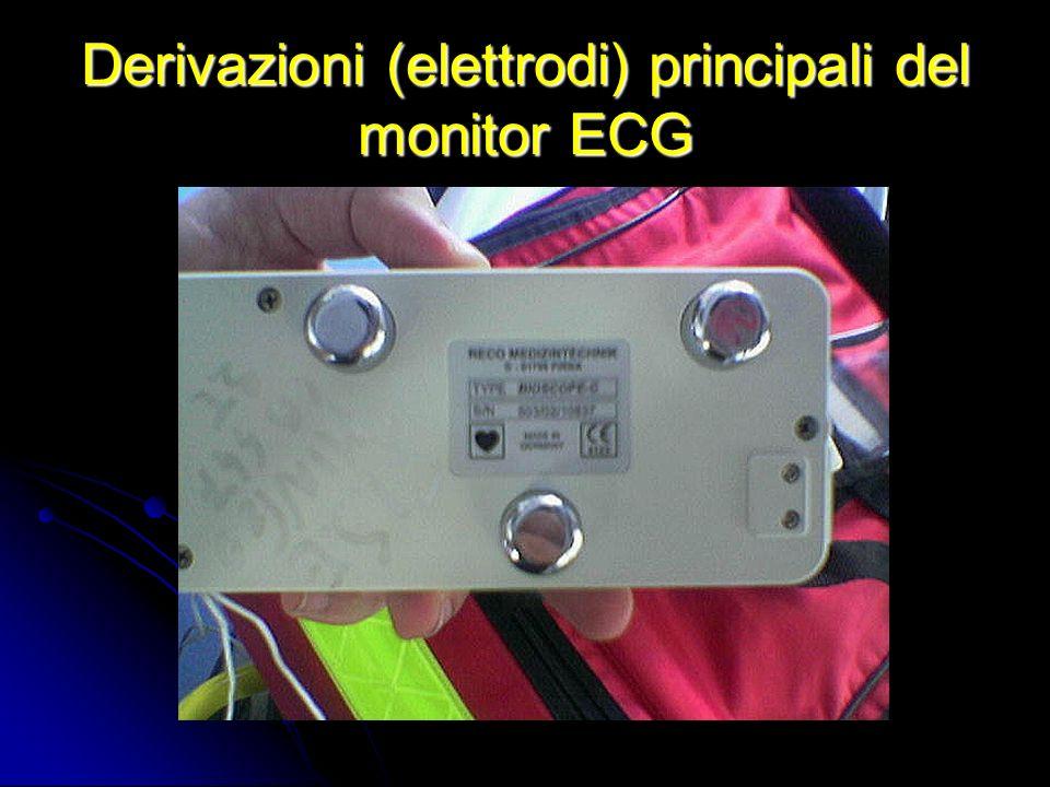 Derivazioni (elettrodi) principali del monitor ECG