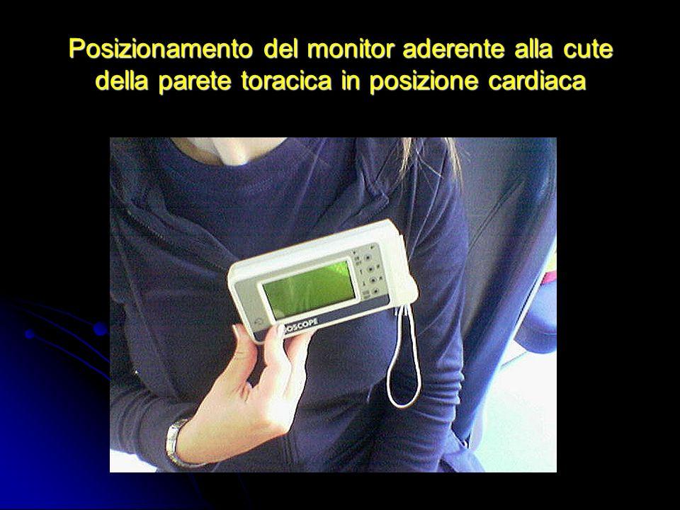Posizionamento del monitor aderente alla cute della parete toracica in posizione cardiaca
