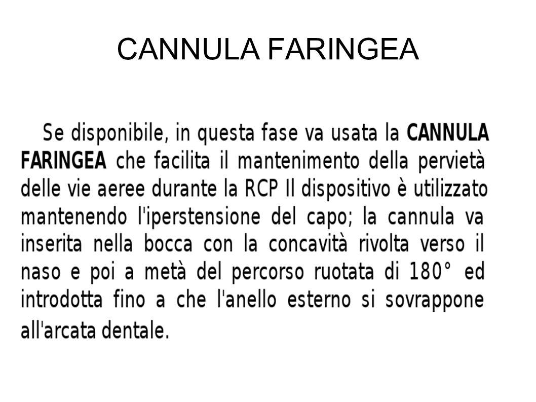 CANNULA FARINGEA