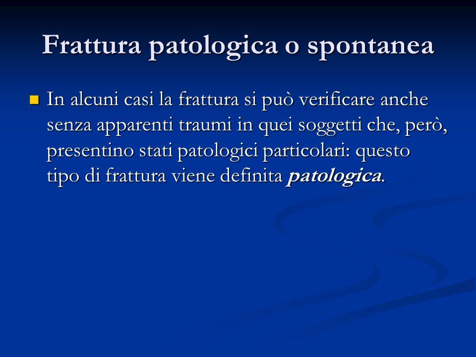 Frattura patologica o spontanea In alcuni casi la frattura si può verificare anche senza apparenti traumi in quei soggetti che, però, presentino stati