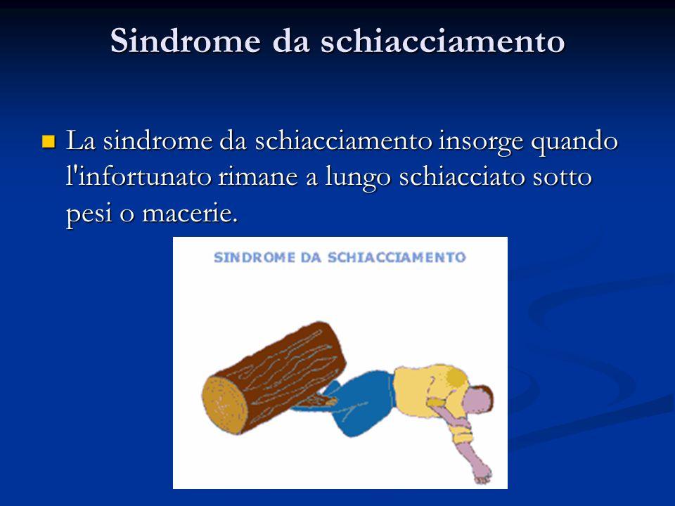 Sindrome da schiacciamento La sindrome da schiacciamento insorge quando l'infortunato rimane a lungo schiacciato sotto pesi o macerie. La sindrome da