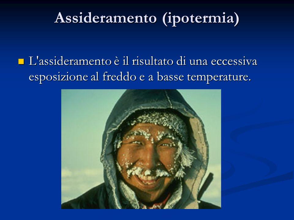 Assideramento (ipotermia) L'assideramento è il risultato di una eccessiva esposizione al freddo e a basse temperature. L'assideramento è il risultato