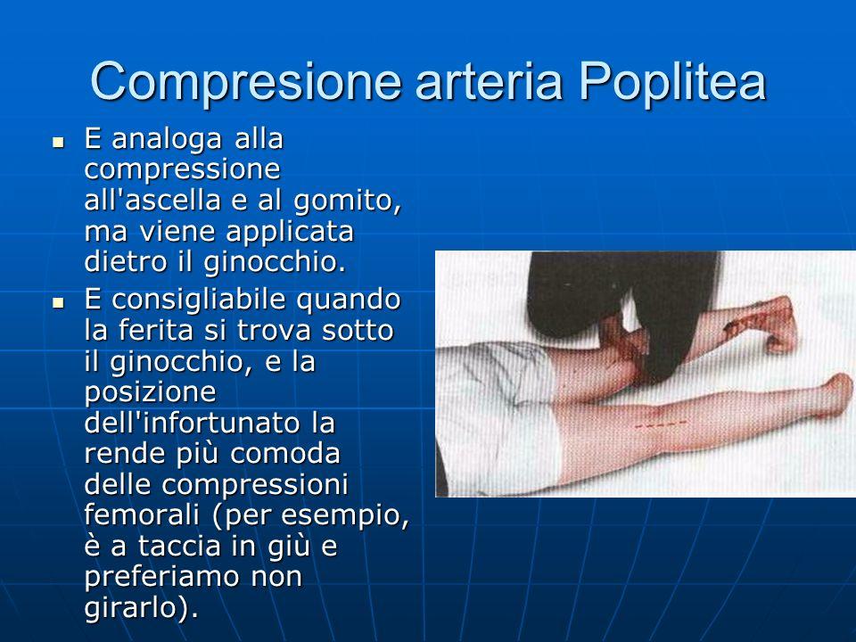 Compresione arteria Poplitea E analoga alla compressione all ascella e al gomito, ma viene applicata dietro il ginocchio.