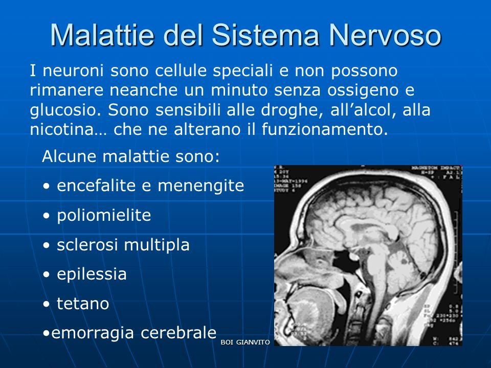 BOI GIANVITO Malattie del Sistema Nervoso I neuroni sono cellule speciali e non possono rimanere neanche un minuto senza ossigeno e glucosio. Sono sen