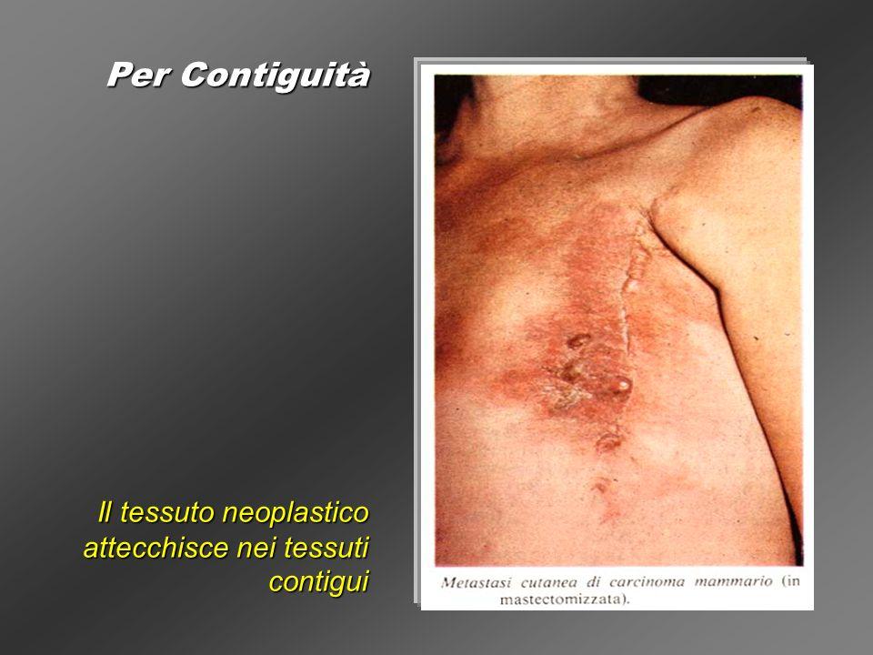 Per Contiguità Il tessuto neoplastico attecchisce nei tessuti contigui