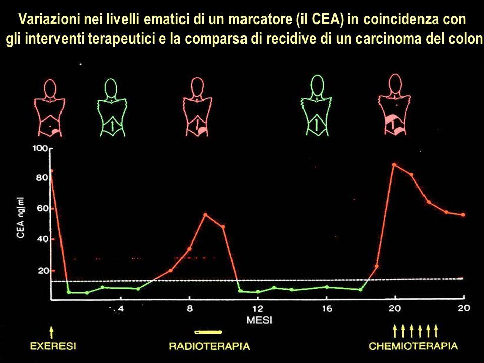 Variazioni nei livelli ematici di un marcatore (il CEA) in coincidenza con gli interventi terapeutici e la comparsa di recidive di un carcinoma del co
