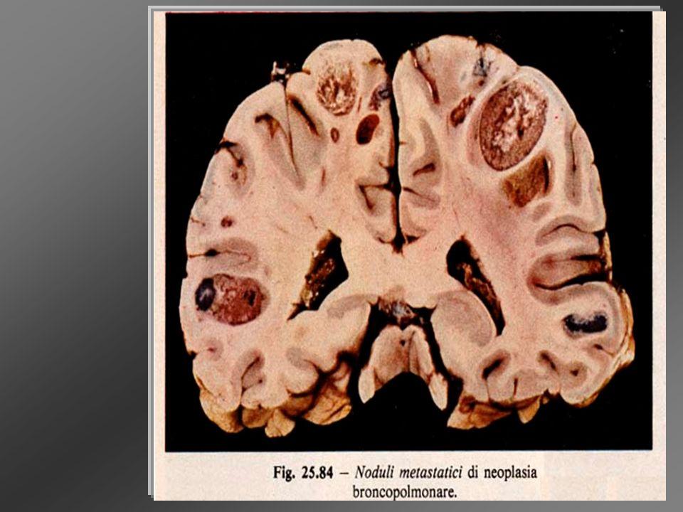 SindromiParaneoplastiche