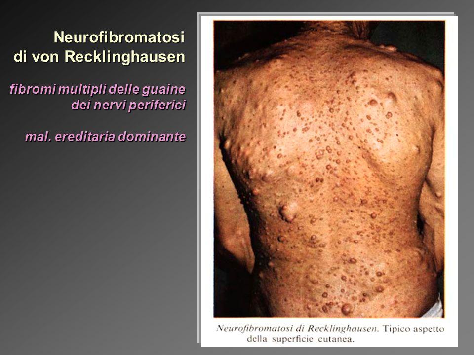 Fattori endogeni: genetici: le Neoplasie Ereditarie