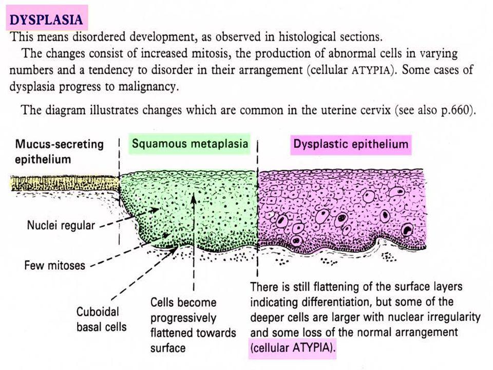 La trasformazione neoplastica : un processo cellulare Nelle cellule tumorali, a causa di mutazioni intervenute nei geni corrispondenti, sono alterate lespressione e le funzioni di una o più proteine fra quelle che partecipano - a vari livelli - alla transduzione intracellulare di segnali extracellulari Queste proteine possono essere recettori della superficie cellulare, proteine citosoliche, fattori di trascrizione nucleari, proteine di ripara- zione del DNA, proteine che controllano lentrata in ciclo e la mitosi, ed altre ancora