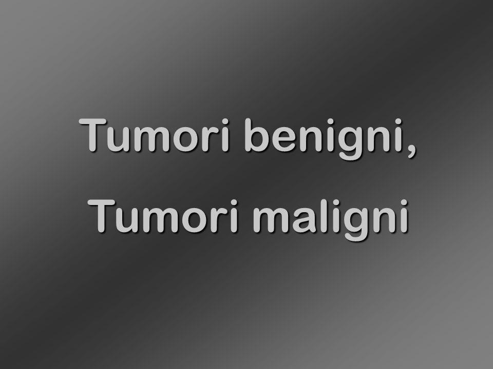Epitelio pluristratificato non cheratinizzato Caratteri di displasia, (grado massimo = = carcinoma in situ)