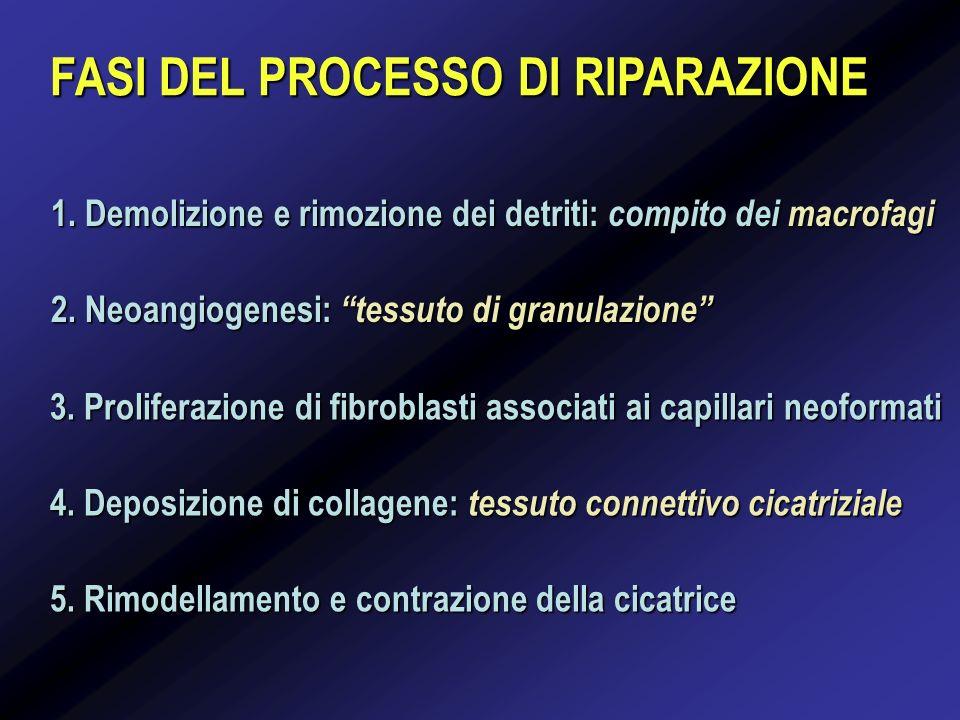 FASI DEL PROCESSO DI RIPARAZIONE 1. Demolizione e rimozione dei detriti: compito dei macrofagi 2. Neoangiogenesi: tessuto di granulazione 3. Prolifera