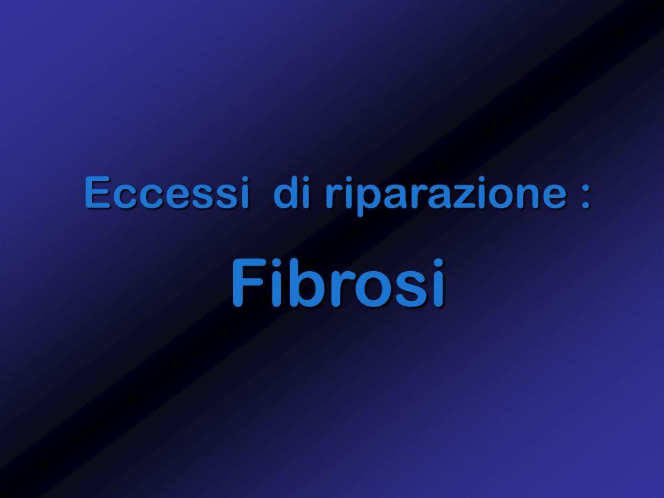 Eccessi di riparazione : Fibrosi