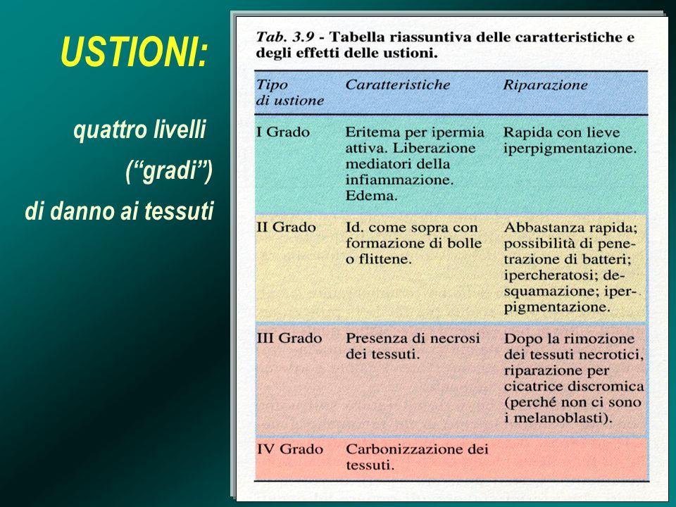 USTIONI: quattro livelli (gradi) di danno ai tessuti