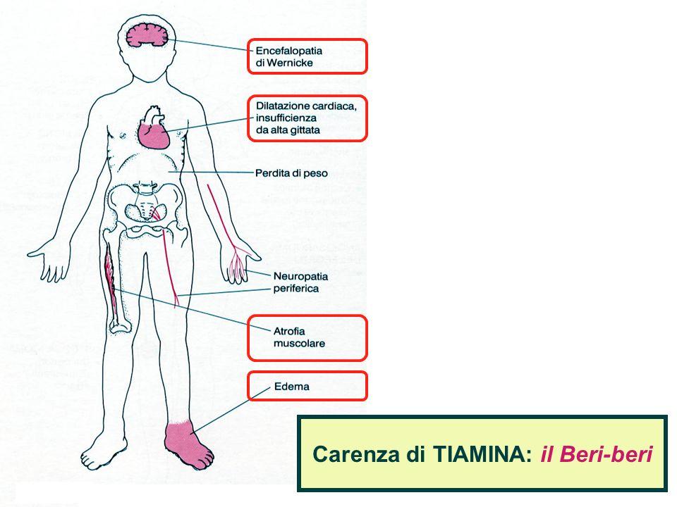 Carenza di TIAMINA: il Beri-beri