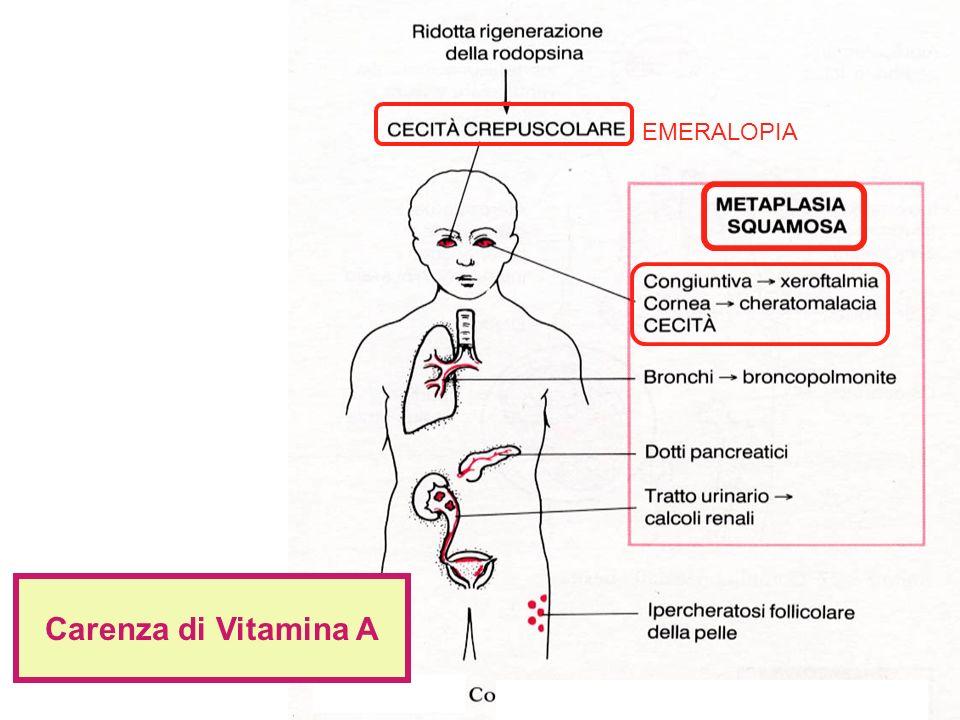 Carenza di Vitamina A EMERALOPIA