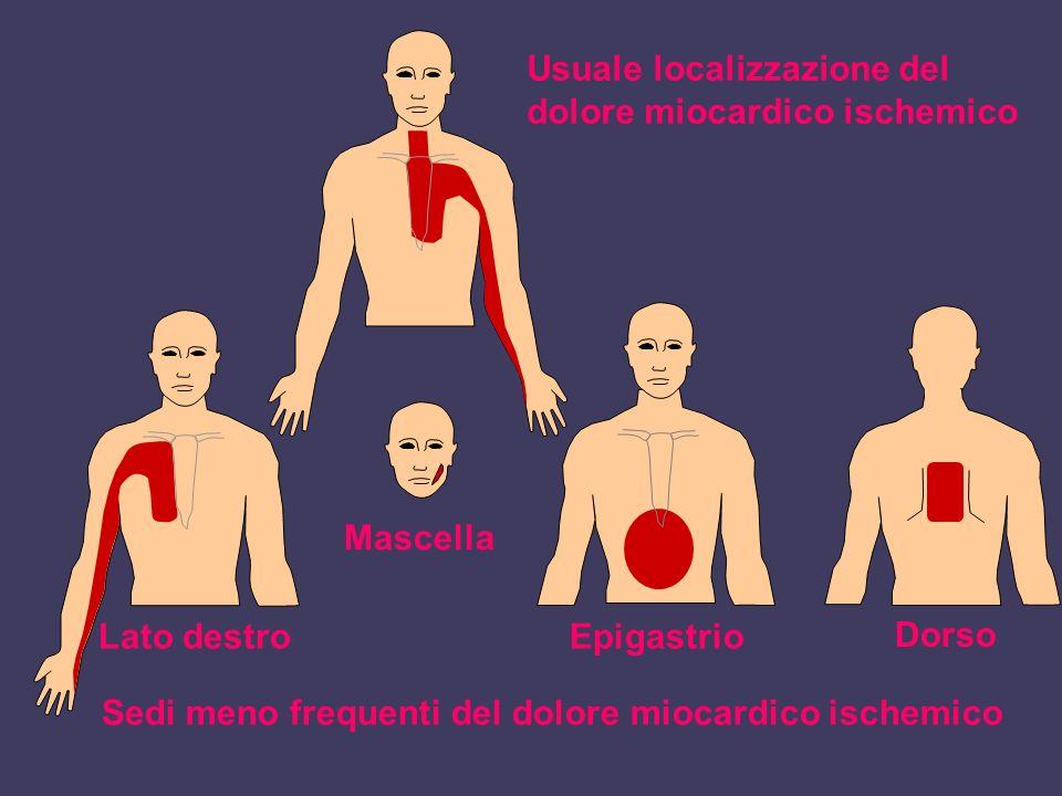 Usuale localizzazione del dolore miocardico ischemico Sedi meno frequenti del dolore miocardico ischemico Lato destro Mascella Epigastrio Dorso