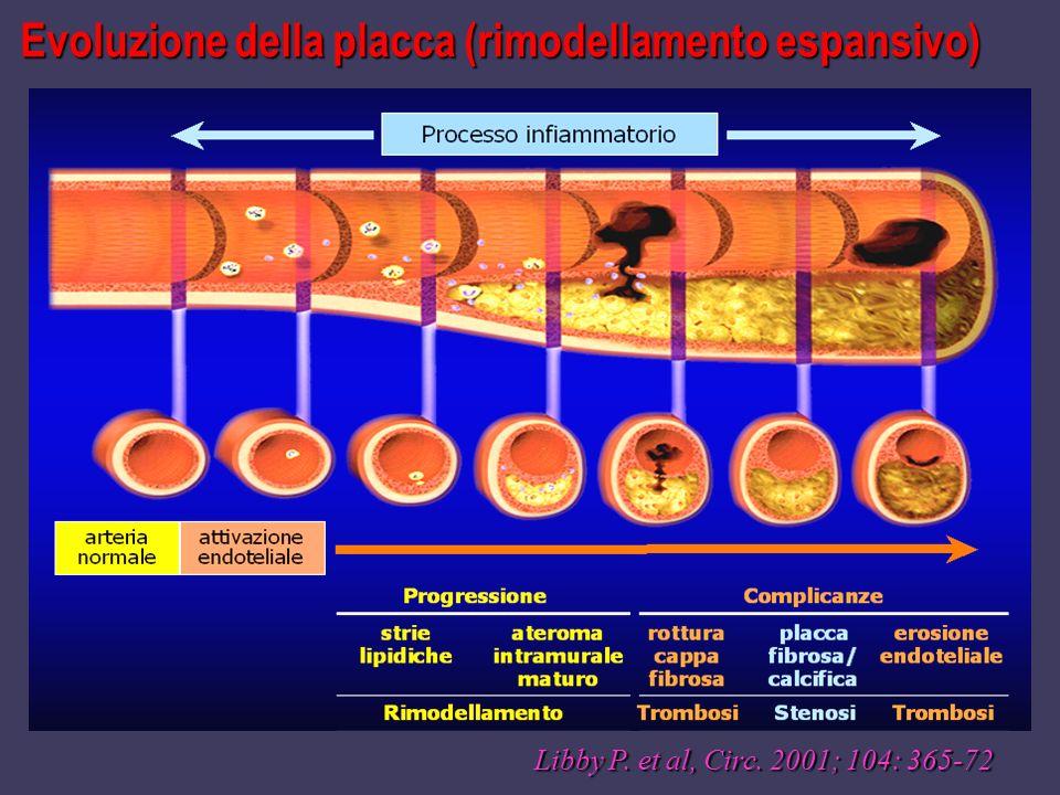 Evoluzione della placca (rimodellamento espansivo) Libby P. et al, Circ. 2001; 104: 365-72