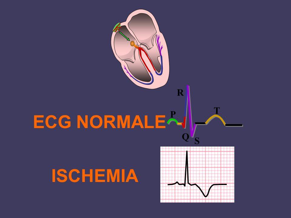 ISCHEMIA ECG NORMALE P Q R S T