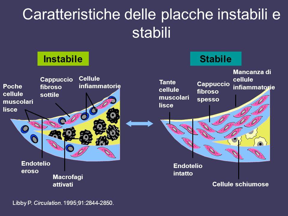 Caratteristiche delle placche instabili e stabili Cappuccio fibroso sottile Cellule infiammatorie Poche cellule muscolari lisce Endotelio eroso Macrof