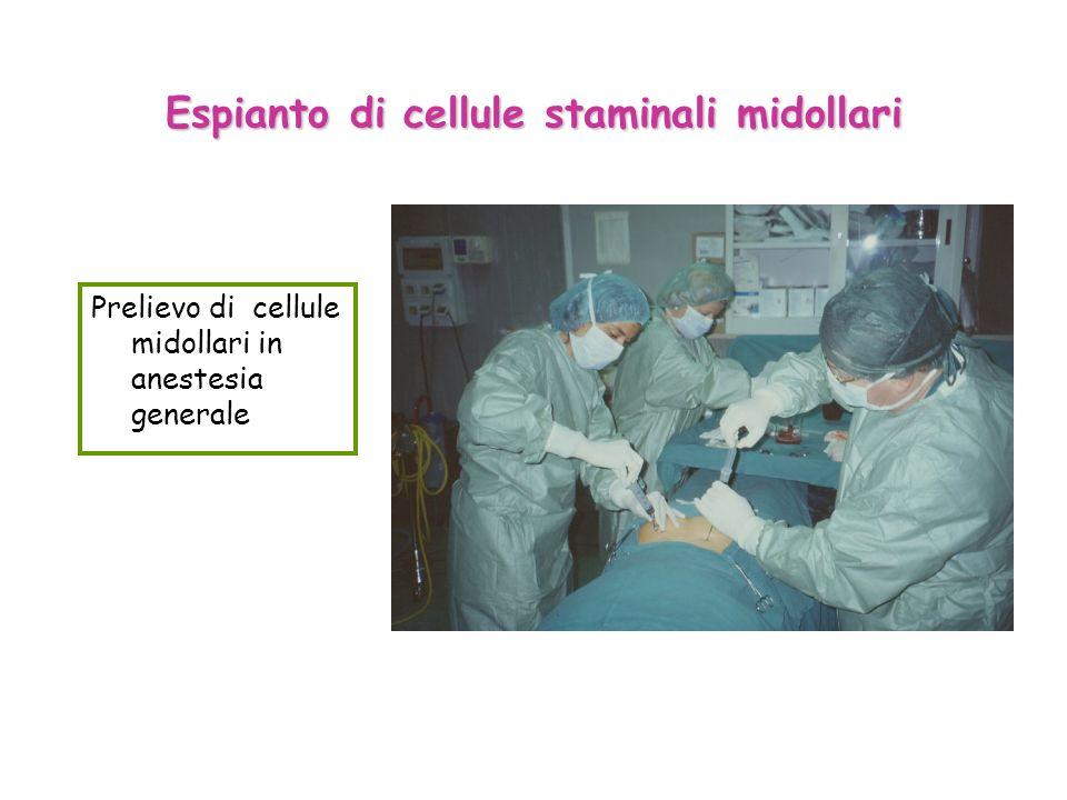 Espianto di cellule staminali midollari Prelievo di cellule midollari in anestesia generale