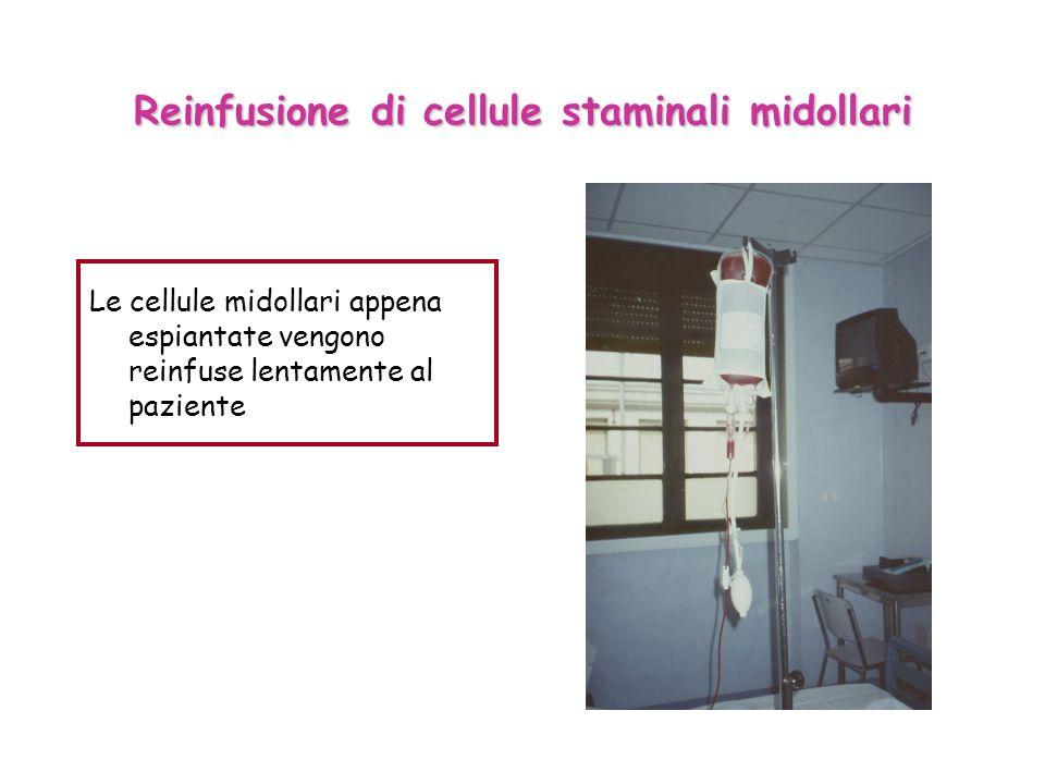 Reinfusione di cellule staminali midollari Le cellule midollari appena espiantate vengono reinfuse lentamente al paziente