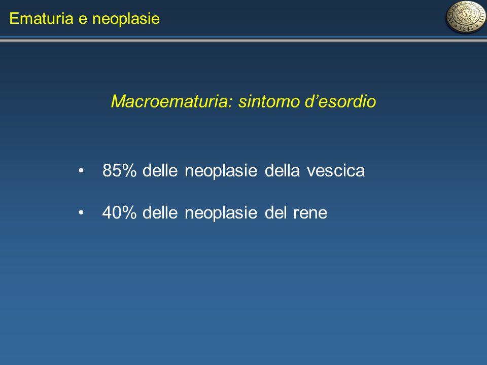 Ematuria e neoplasie Macroematuria: sintomo desordio 85% delle neoplasie della vescica 40% delle neoplasie del rene