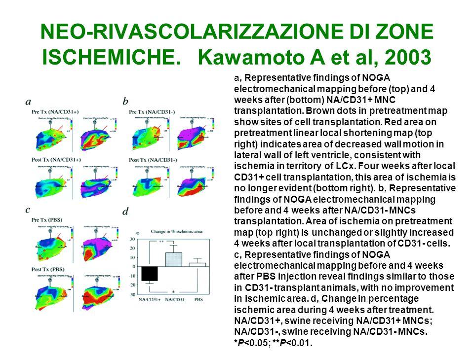 NEO-RIVASCOLARIZZAZIONE DI ZONE ISCHEMICHE. Kawamoto A et al, 2003 a, Representative findings of NOGA electromechanical mapping before (top) and 4 wee