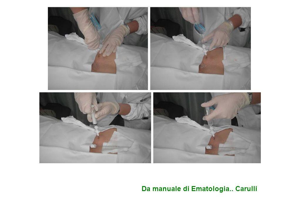Da manuale di Ematologia.. Carulli