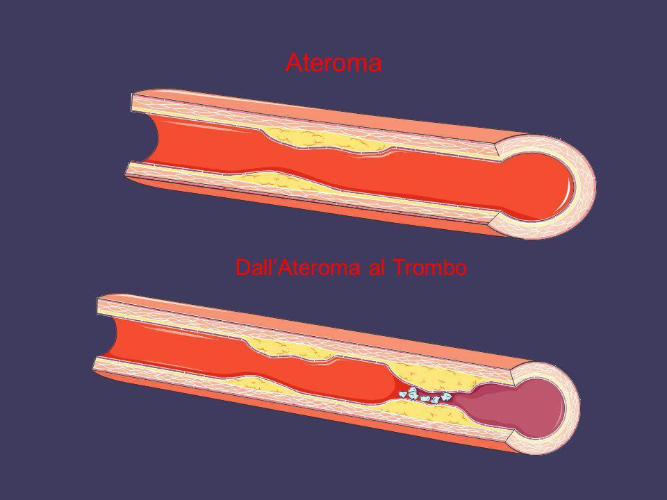 Ateroma DallAteroma al Trombo