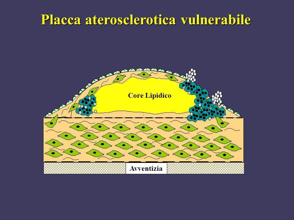 Placca aterosclerotica vulnerabile Core Lipidico Avventizia