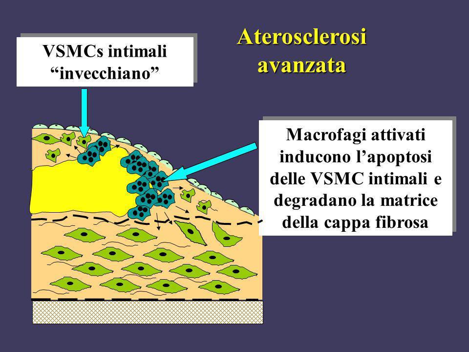 Macrofagi attivati inducono lapoptosi delle VSMC intimali e degradano la matrice della cappa fibrosa VSMCs intimali invecchiano Aterosclerosi avanzata