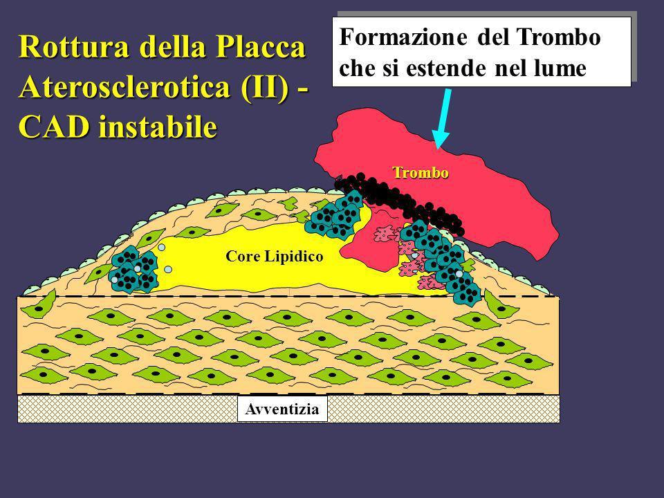 Avventizia Trombo Rottura della Placca Aterosclerotica (II) - CAD instabile Formazione del Trombo che si estende nel lume