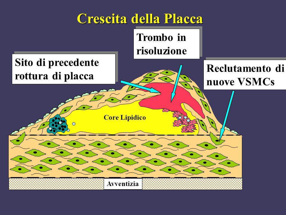 Core Lipidico Trombo in risoluzione Avventizia Sito di precedente rottura di placca Reclutamento di nuove VSMCs Crescita della Placca